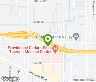Eye Institute Of Tarzana Tarzana Ca Groupon