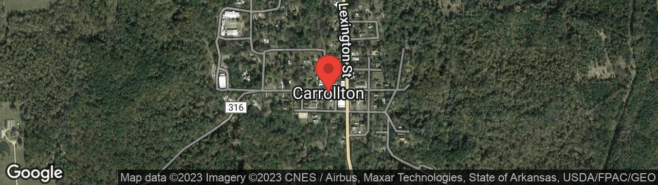Hair Loss Treatment Carrollton MS 38917
