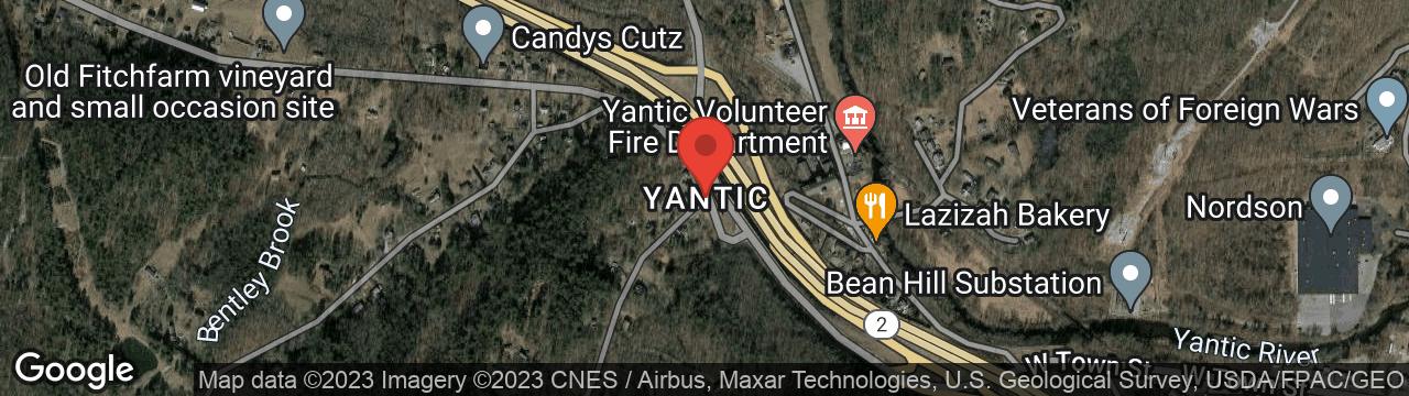Hair Loss Treatment Yantic CT 06389